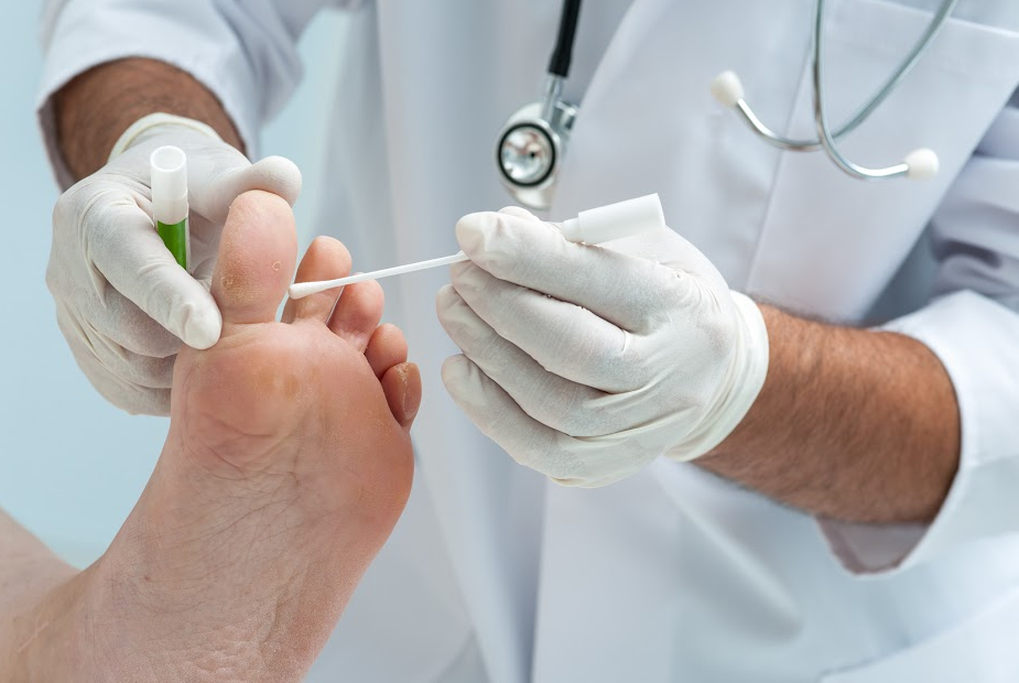 Tinia pedis or Athletes foot treatment in atlanta