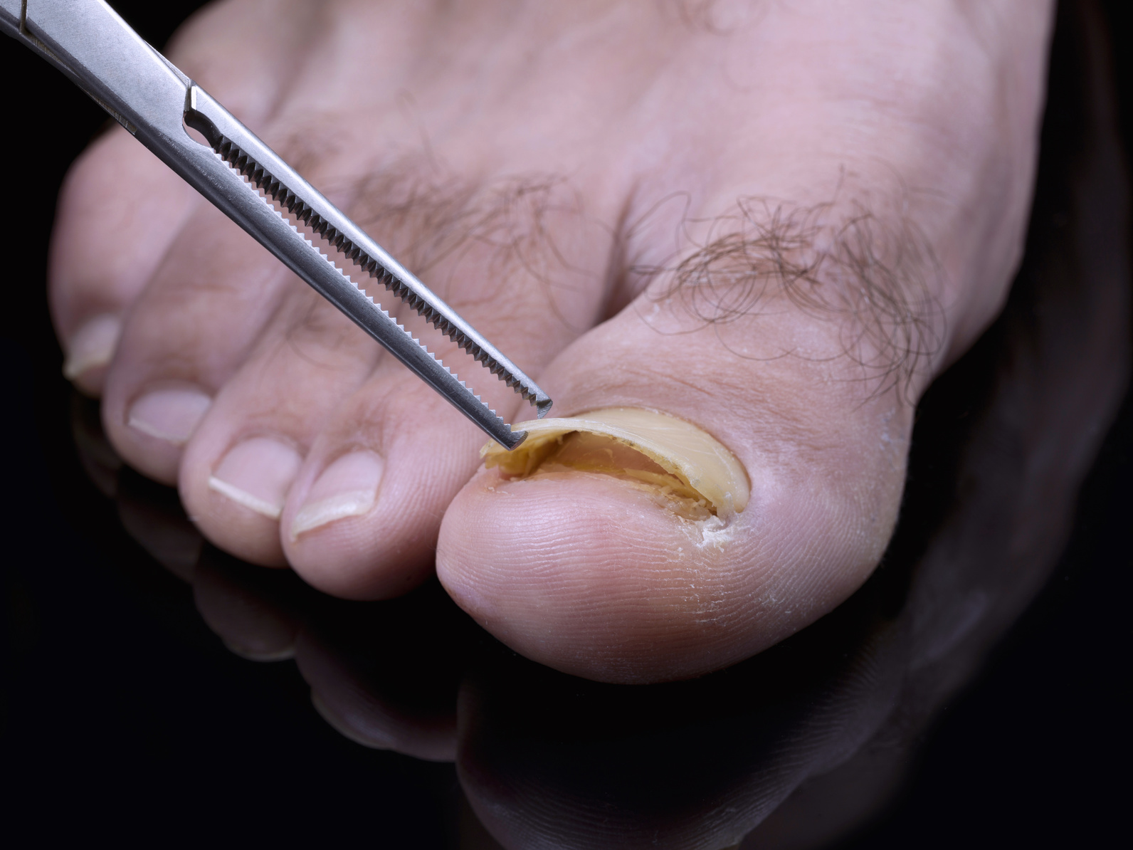 Toenail fungus treatment - Atlanta Podiatrists: Atlanta Foot and ...